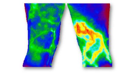 Thermographie Beine