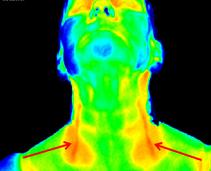 Thermographie Carotiden